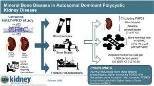 Mineral Bone Disease in Autosomal Dominant Polycystic Kidney Disease
